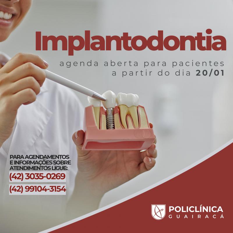 PoliClínica Guairacá amplia atendimento à população e oferece implantes dentários